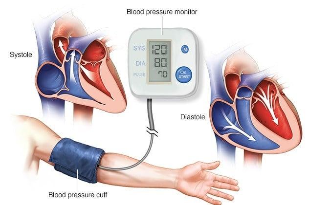 Hypertension Checkup